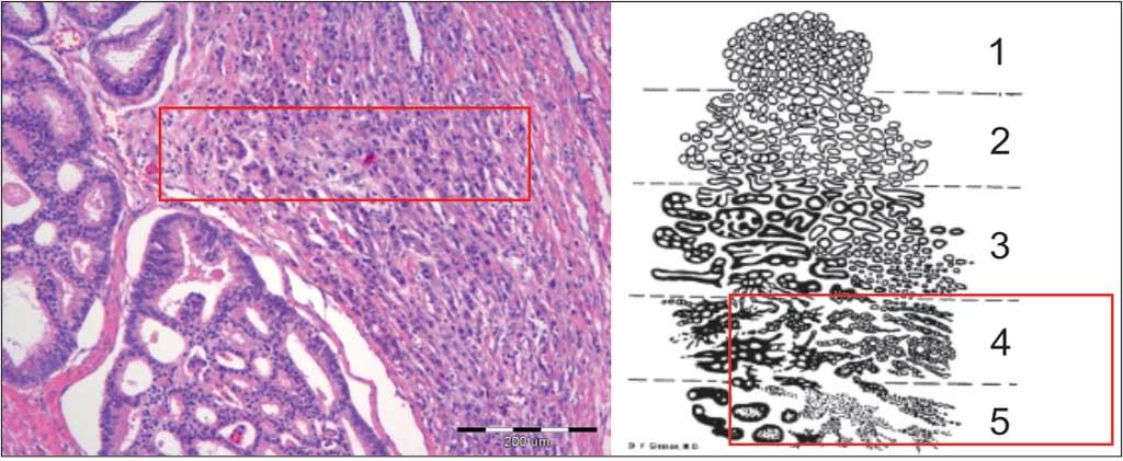 adenocarcinoma acinar usual prostata gleason 6 3 3 review